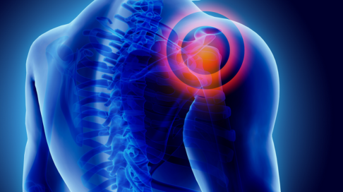 Non-traumatic shoulder pain in general practice: a pragmatic approach to diagnosis
